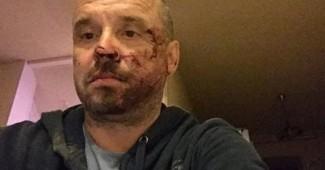 """Лидера донецкой """"Батькивщины"""" серьезно избили в Мариуполе"""